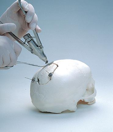 Εργαλειο τοποθετησης craniofix